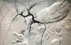 Cảnh giác với bệnh tắc nghẽn mạch