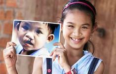 Khám sàng lọc và phẫu thuật nhân đạo cho trẻ dị tật khe hở môi, hàm ếch