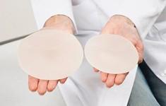 Đặt túi ngực có thể gây ung thư?