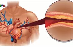 Phát hiện mới: Lượng cholesterol tốt quá cao dễ gây đau tim