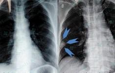 Cứu sống bệnh nhân bị thuyên tắc phổi bằng thuốc tiêu sợi huyết