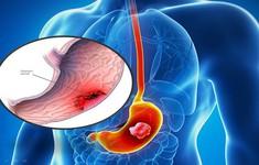 Tìm hiểu về khối u dạ dày lành tính, ác tính