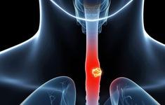 Ung thư thực quản trẻ hóa - đâu là nguyên nhân?