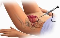 Phẫu thuật sa sinh dục bằng phương pháp cố định tử cung