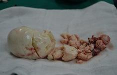 Cụ bà 74 tuổi vào viện với hai khối u vú và buồng trứng