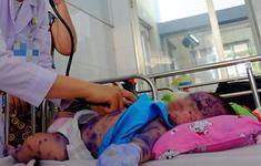 TP.HCM: Nhiều bệnh nhi vài tuần tuổi bị lây thủy đậu từ mẹ