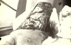 Cứu ô gái bị lóc da toàn bộ mu bàn chân do tai nạn giao thông