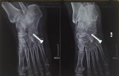 Trẹo cổ chân đơn giản - chịu đau 20 năm vì tự dùng thuốc chữa
