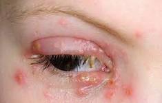 """Các bệnh về mắt liên quan đến  """"chuyện ấy"""""""