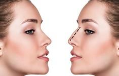Những điều cần biết về phẫu thuật thẩm mỹ mũi