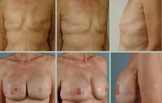 Biến chứng nào có thể xảy ra sau phẫu thuật ung thư vú?