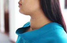 8 dấu hiệu cảnh báo hội chứng cường giáp