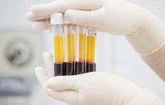 Thay huyết tương cứu bệnh nhân viêm tụy cấp do tăng mỡ máu