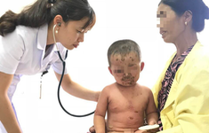 Bé trai 2 tuổi bị viêm da mủ toàn thân, loét hết mặt vì tắm nước lá