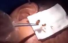 Gián chui vào tai bệnh nhân, bác sĩ phải dùng kẹp gắp