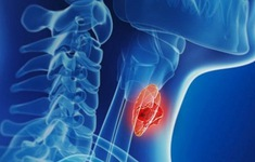 Các dạng ung thư tuyến giáp và phương pháp điều trị