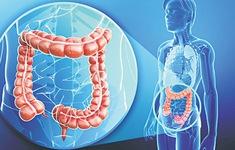 Viêm loét đại tràng có thể tăng nguy cơ ung thư đại trực tràng?
