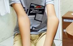 Bé trai 12 tuổi thoát thoái hóa khớp nhờ phẫu thuật vẹo khuỷu tay kịp thời