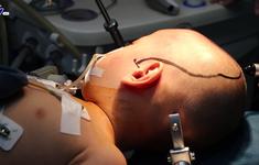 Phẫu thuật thành công cho bệnh nhi động kinh kháng thuốc