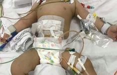 Người mẹ tâm thần dùng dao đâm vào bụng con trai 11 tháng tuổi