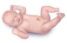 Bệnh phình đại tràng bẩm sinh ở trẻ