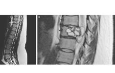 Ký sinh trùng trong cột sống bệnh nhân