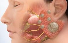 Ung thư tuyến nước bọt - Căn bệnh nguy hiểm