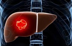 5 hiểu lầm thường gặp về ung thư gan