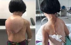 Cắt bỏ bướu khổng lồ khỏi lưng người phụ nữ 49 tuổi