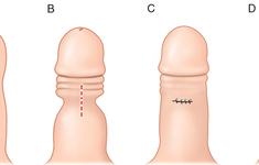 Bao quy đầu dài có ảnh hưởng gì?