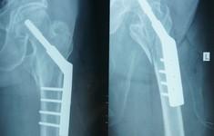 Phẫu thuật thành công cho bệnh nhân bị gãy liên mấu chuyển xương đùi