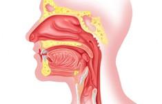 4 bệnh tai mũi họng thường gặp bạn cần biết