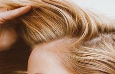 Nếu mệt mỏi vì bị ngứa da đầu, đây là những điều bạn cần biết