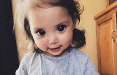 Căn bệnh khiến đôi mắt của em bé hai tuổi trở nên to tròn