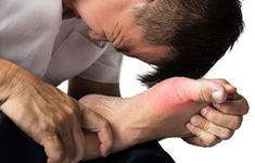 Những nguyên tắc giúp bạn sống hòa bình với gout