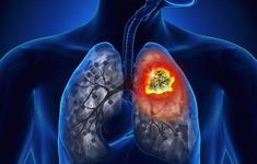 Ung thư phổi - Những con số đáng báo động