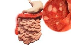 Bệnh viêm đại tràng mãn tính khó trị dứt điểm và hay tái phát
