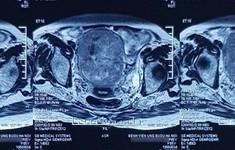 Nhập viện nguy kịch sau khi từ chối điều trị ung thư nội mạc tử cung