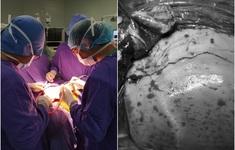 Cứu bé 3 tuổi bị mảnh kim loại xuyên sọ nguy kịch