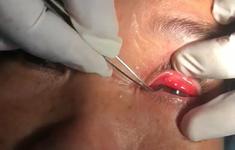 Vào viện cầu cứu bác sĩ sau 15 ngày tự lấy... con vắt trong mắt thất bại