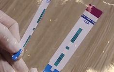 Lập đoàn thanh tra việc sử dụng test thử HIV, viêm gan B tại Bệnh viện Xanh Pôn
