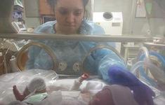 Em bé Mỹ sinh ra hoàn toàn không có da