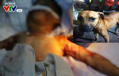 Thêm một bé trai bị chó nhà nuôi tấn công tử vong