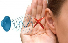 Bệnh điếc đột ngột: Đừng chủ quan!