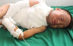 Bé trai 10 tuổi người Mông bị bỏng cần được giúp đỡ