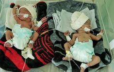 UNICEF cảnh báo về thực trạng chăm sóc sức khỏe bà mẹ và trẻ sơ sinh tại Yemen
