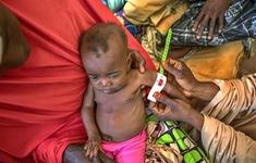 LHQ kêu gọi quyết tâm xóa bỏ tình trạng suy dinh dưỡng ở trẻ em