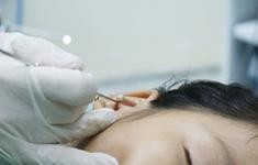 Xem bác sĩ gắp hạt cườm trong tai gây mủ, khiến bé gái 8 tuổi đau nhức