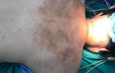 Tê liệt chân vì chữa thoát vị đĩa đệm bằng giác hơi