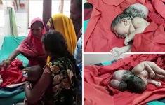 """Bé gái sơ sinh """"ba đầu"""" tại Ấn Độ"""